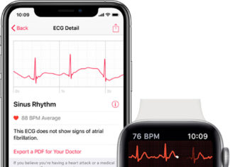 Electrocardiogramas en el Apple Watch